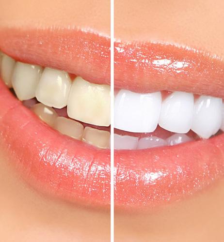 Blanchiment_des_dents_dentiste_IlePerrot