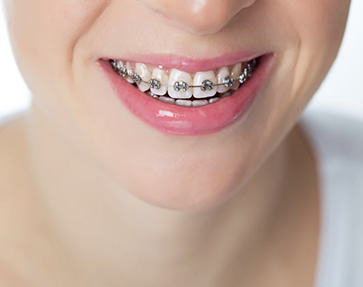 Broches_boitiers_metalliques_Dentiste_IlePerrot
