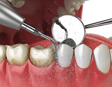 Curetage_Dentiste_IlePerrot