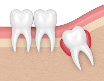 Dents_incluses_dentiste_ilePerrot