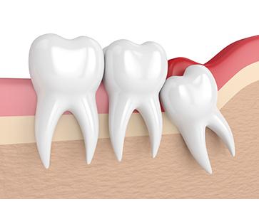 Dents_semi-incluses_Dentiste_ilePerrot