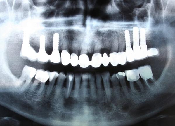 Greffe_Osseuse_Dentiste_IlePerrot