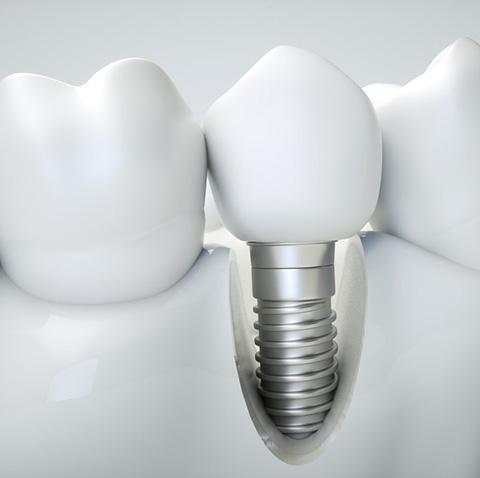 Implants_Dentaires_IlePerrot