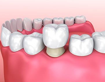Installation_Couronne_Dentiste_IlePerrot
