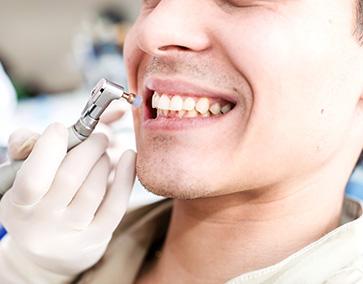Nettoyage_Dentaire_IlePerrot