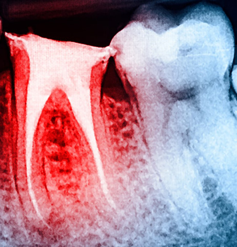 Traitement_de_canal_dentiste_IlePerrot
