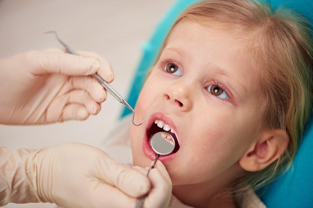Frenectomie_Dentiste_IlePerrot