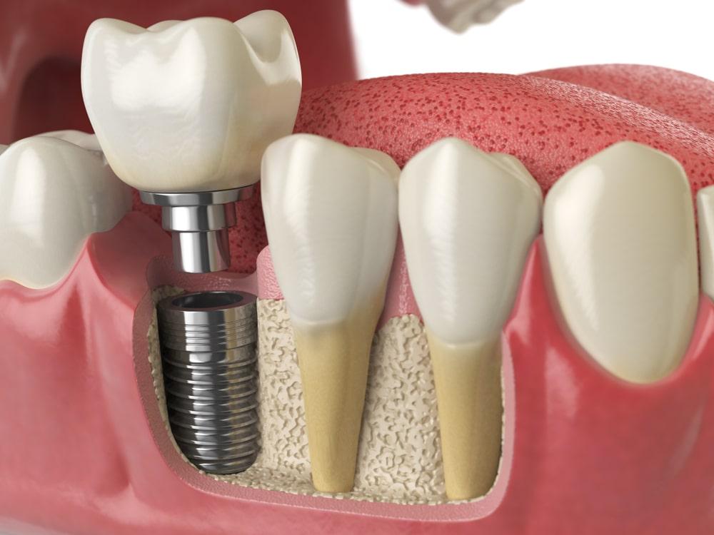 Implantologie_dentiste_IlePerrot