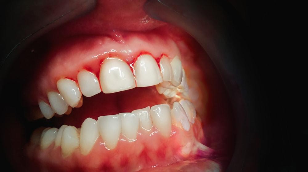 Parodontie_Dentiste_IlePerrot