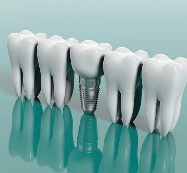 Les implants dentaires remplacent les dents manquantes