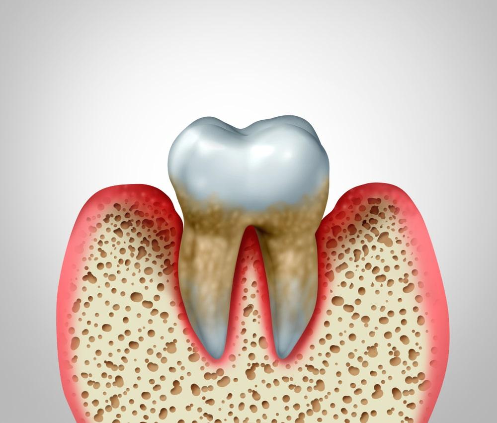 La parodontite nuit aux tissus qui supportent les dents